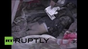 Yemen: Saudi-led airstrikes batter residential area, eight reported dead *GRAPHIC*