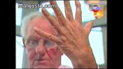 Изумително!!!човек с 6 пръста...!!!