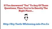 Teeth Whitening Kits, Led Teeth Whitening, Teeth Whitening Pens, Smile Bright Teeth Whitening