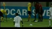 Футболист замалко да остане без ръка