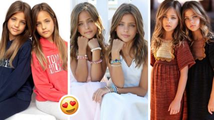 Тези близначки удивиха света с чар! Това ли са най-красивите деца на света?
