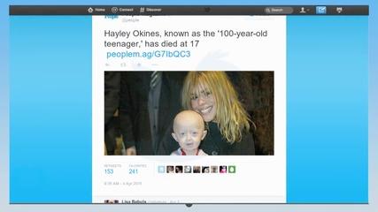 Хейли Окинес: Вдъхновяващата история на болно дете с прогерия