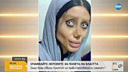 19-годишна претърпя 50 операции, за да заприлича на Анджелина Джоли
