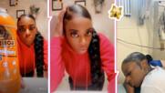 TikTok-ърка си залепи косата с лепило - хирург маха пораженията! Жената плаши със съд