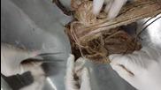 Anatomy Upper Limb