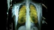 Тютюнопушенето е вредно за вашето здраве