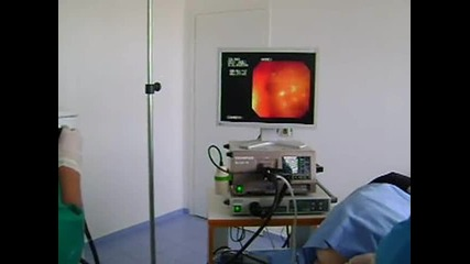 Видеосигмоидоскопия