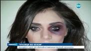 Красавици от цял свят се обявиха срещу насилието