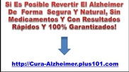 Como Se Trata El Alzheimer