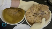 Did Eating Brains Help Tribe Become Disease Resistant?