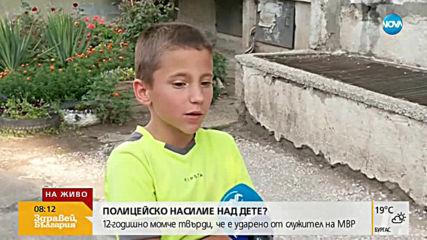 ПОЛИЦЕЙСКО НАСИЛИЕ НАД ДЕТЕ?:12-годишно момче твърди, че е ударено от служител на МВР
