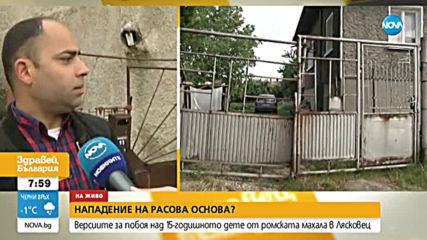 Какво е състоянието на момчето, което беше пребито в Лясковец?