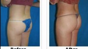 Abdominoplasty - Liposuction Cosmetic Surgery