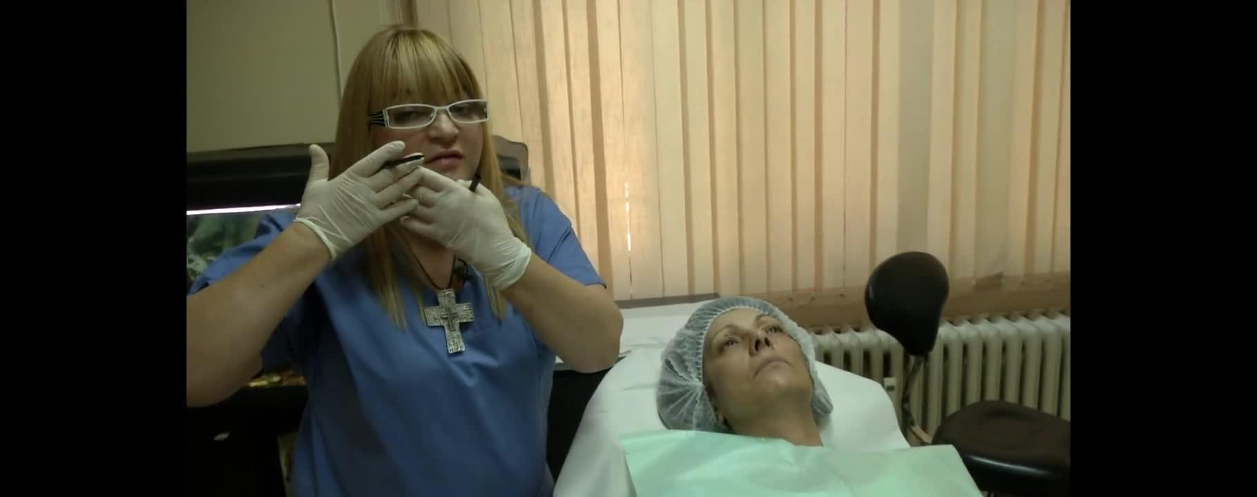 Неоперативен лифтинг с мезо конци - лазерен и дерматологичен център за естетична медицина Пандерма