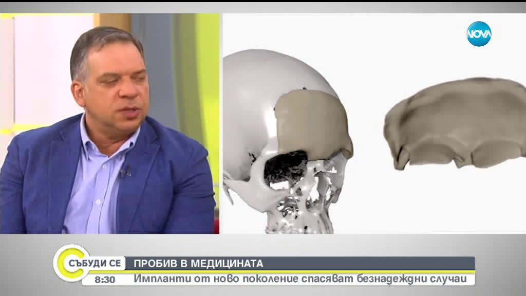 3D импланти от ново поколение спасяват безнадеждни случаи