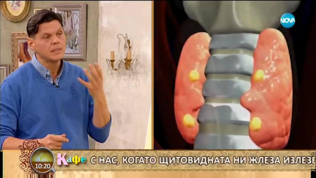 Доктор Гайдурков дава съвети с решения на проблемите с щитовидната жлеза - На кафе (23.01.2018)